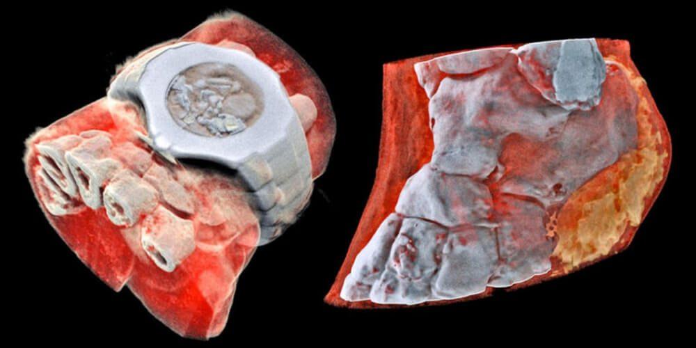 innovación-en-la-salud-radiografías-a-color-muñeca-tobillo-movidatuy.com