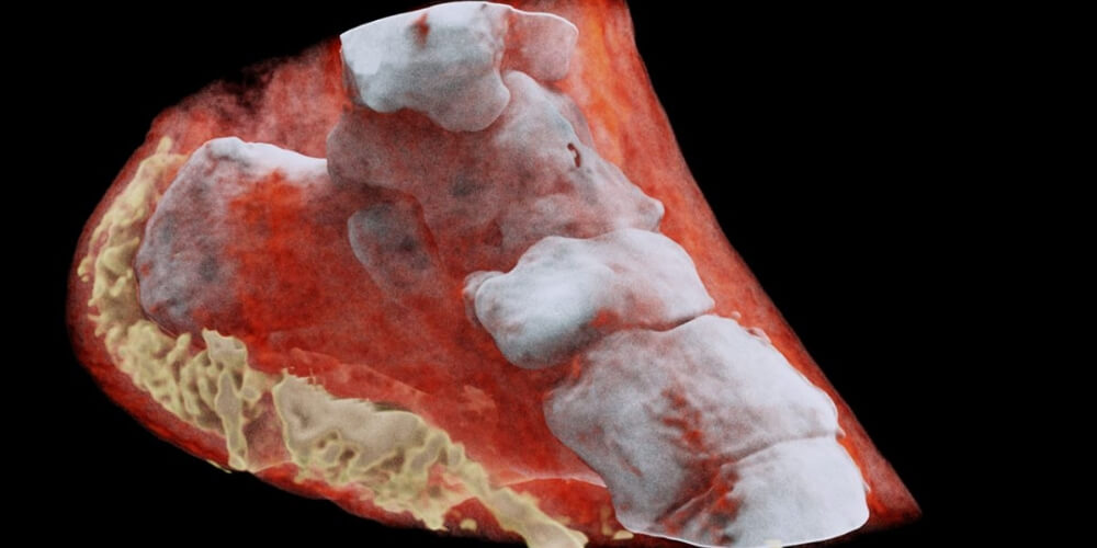 ✅ Innovación en la salud: Ahora las radiografías serán a color ✅