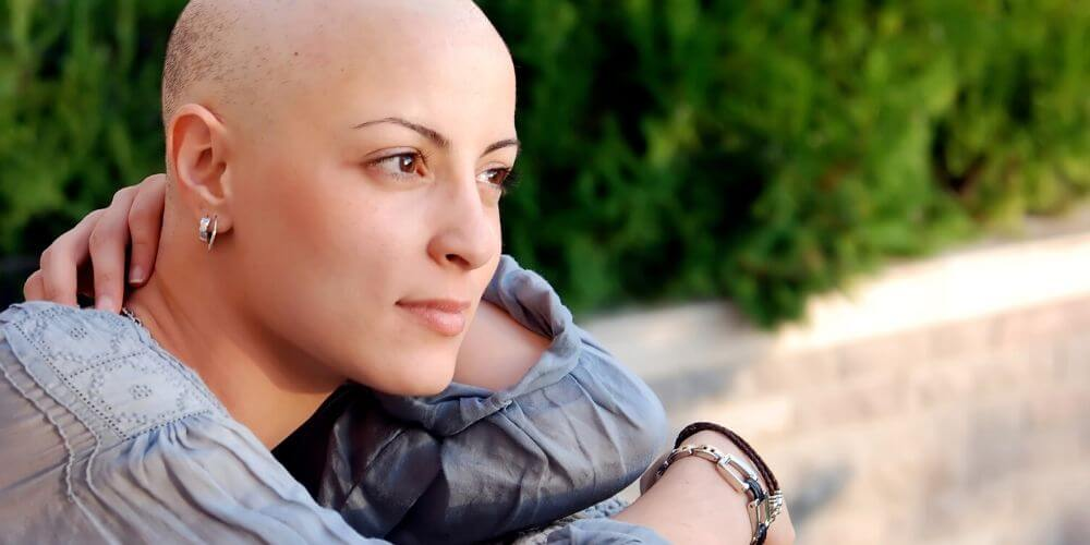 tecnologia-ya-no-mas-caida-del-cabello-a-los-enfermos-con-cancer-mujer-sin-cabello-movidatuy.com