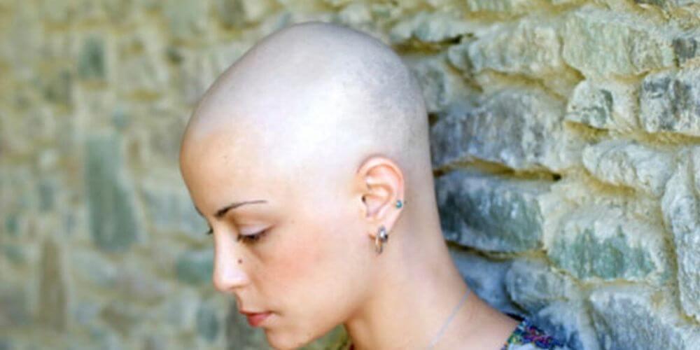 tecnologia-ya-no-mas-caida-del-cabello-a-los-enfermos-con-cancer-quimioterapia-movidatuy.com