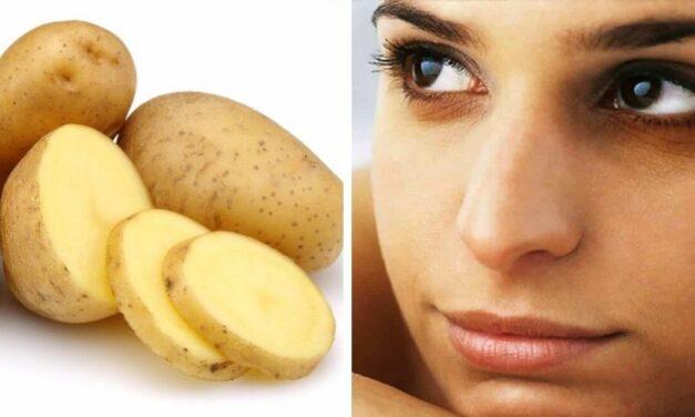 ✅ Cómo deshacerse de las horribles ojeras usando patata ✅
