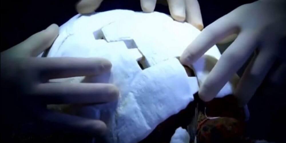 adorable-tortuga-recibio-el-primer-caparazon-del-mundo-impreso-en-3D-caparazon-impreso-movidatuy.com
