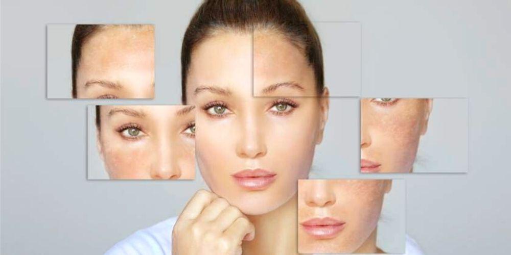 remedios-naturales-para-eliminar-las-manchas-oscuras-de-la-cara-salud-movidatuy.com